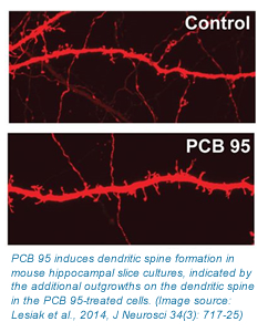 A photo of dendritic spines with and without PCB exposure.